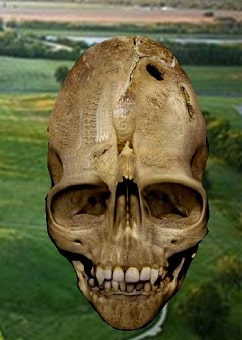 Andover Skull had unusually large eye sockets, the teeth were bizazre and elongated and it was larger than the average human skull