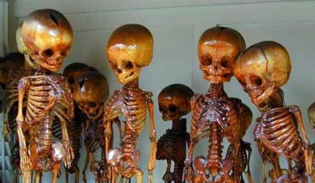 Preserved Pygmy Skeletons